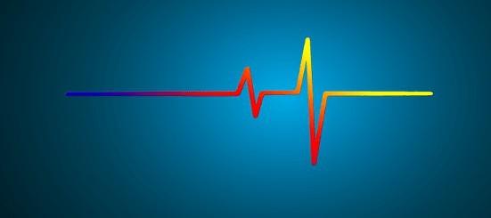 Phono vs line signal